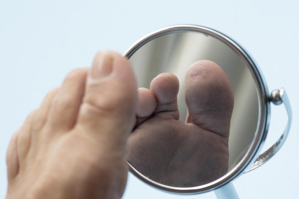 Das diabetische Fußsyndrom stellt eine späte Komplikation dar, die bei bis zu 10% von langzeit Diabetes Patienten auftritt. Aufgrund der Zuckerkrankheit kommt es zu einer Schädigung der Nerven (Polyneuropathie) und des Gefäßsystems (Mikroangiopathie), welche zu einer deutlich reduzierten Schmerzempfindlichkeit am Fuß führt.